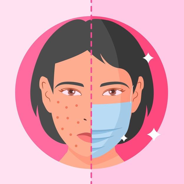 maskne cos'è come prevenirla trattarla