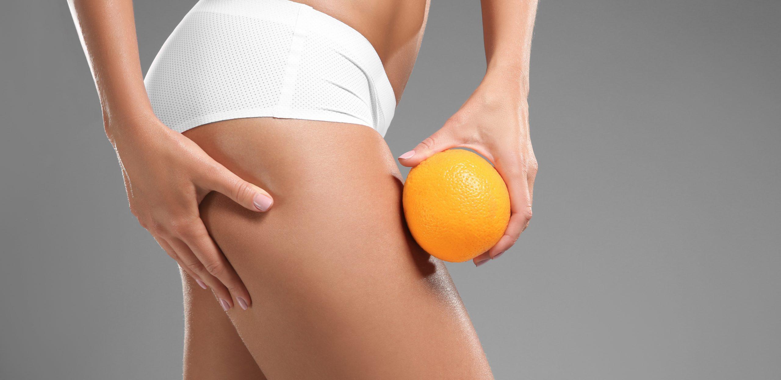 cellulite come riconoscerla prevenirla trattarla